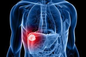 Những dấu hiệu cảnh báo ung thư đã di căn đến gan